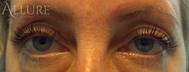 Lash lift by Nancy
